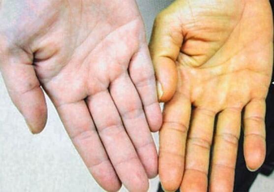 «Тихая» эпидемия вирусного гепатита С стала причиной дебатов в парламенте Шотландии