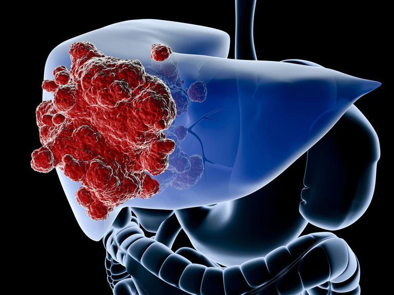 Гепатит С может стать причиной развития рака?