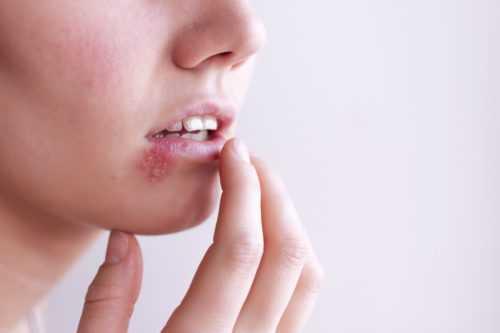 Лечение герпеса на губах | VirusStop