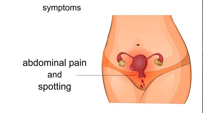 Ризик раку шийки матки при ВПЛ