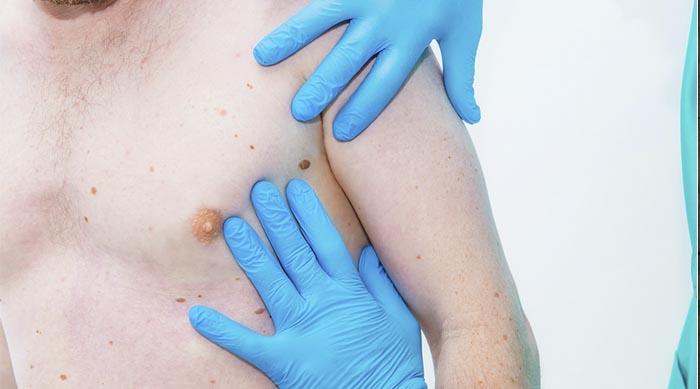 Лікування ВПЛ-інфекції - методи, процедури, ускладнення | Вірус Стоп