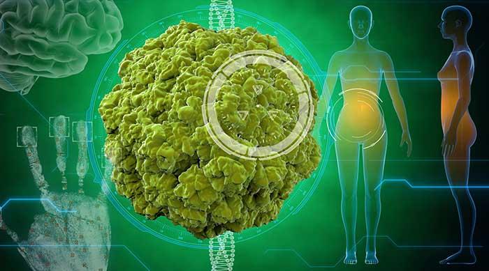 ВПЛ-інфекція: про що ви ще не знали або чим загрожує папілома | Вірус Стоп